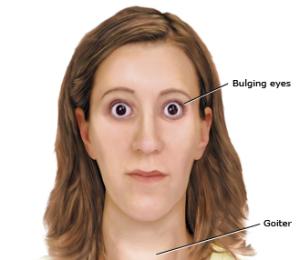 hyperthyroidism-overactive-thyroid